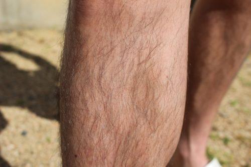 濃い体毛がコンプレックスな男女必見!体毛を薄くする方法